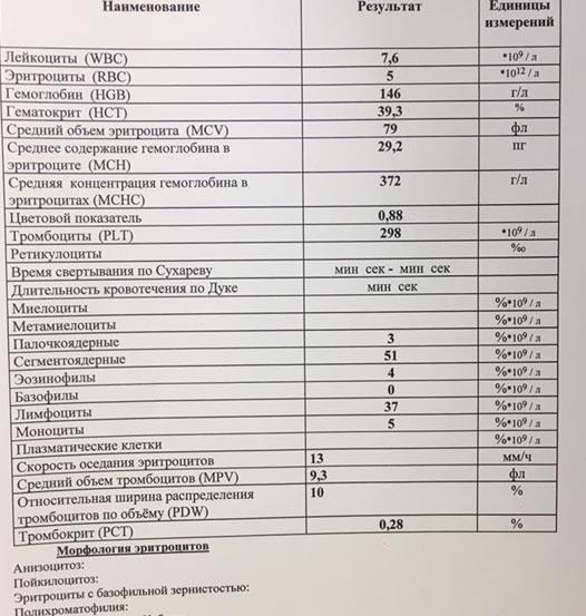 Рисунок 4. Общий анализ крови при инфекционном мононуклеозе - лимфоцитоз и моноциты.