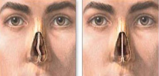 Септопластика - операция на перегародке носа в клинике ПрофЛОРцентр